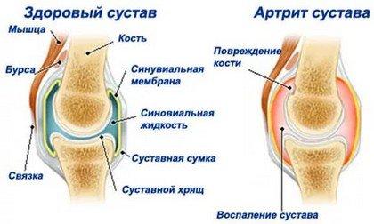 Заболевания суставов у пожилых людей лечение желатином суставов отзывы